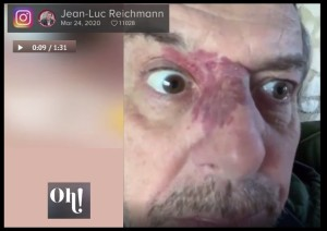 CORONAVIRUS JEAN LUC REICHMANN